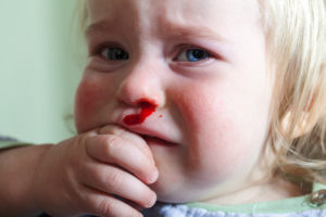 krew z nosa u dziecka